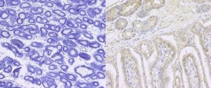 ITGB1 Antibody (PA5-29606)