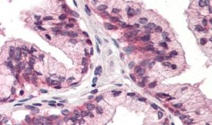CD298 Antibody (PA5-33345)
