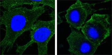 VEGF Receptor 2 Antibody (MA5-15556)