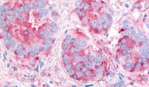 VEGF Receptor 2 Antibody (PA5-32892)