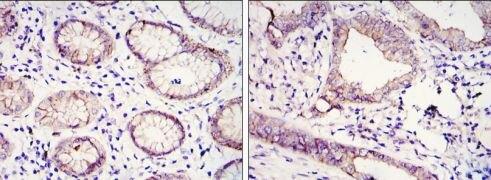 E-cadherin Antibody (MA5-15711)