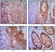 EpCAM Antibody (MA5-15640)
