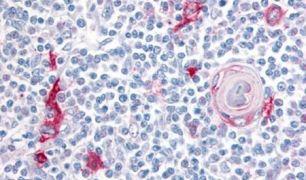 ITGA4 Antibody (PA5-32882)