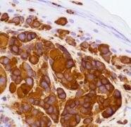 CD63 Antibody (MA5-16343)