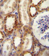 CD73 Antibody (PA5-11870)