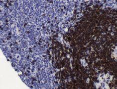 CD79a Antibody (MA5-16344)