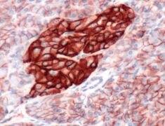 CD99 Antibody (PA5-32337)