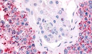 Cdc7 Antibody (PA5-33416)