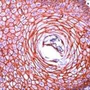 N-cadherin Antibody (PA1-37199)