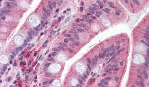 CDHR5 Antibody (PA5-32705)