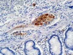 p21 Antibody (MA1-19271)