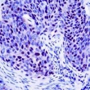 CDKN2A Antibody (PA1-38334)