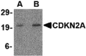 CDKN2A Antibody (PA5-20379)