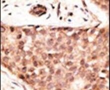 CDX2 Antibody (PA5-13122)