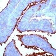 CEA Antibody (PA1-37416)