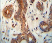 CEPT1 Antibody (PA5-23876)