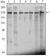 CHD3 Antibody (MA5-15579)