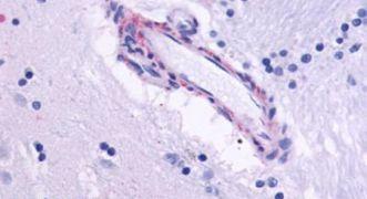 CHRM5 Antibody (PA5-33435)