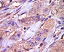 CK1 epsilon Antibody (PA5-14298)
