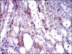 Cytokeratin 5 Antibody (MA5-17058)