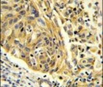 Clathrin Light Chain A Antibody (PA5-26026)