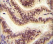 CP045 Antibody (PA5-24306)