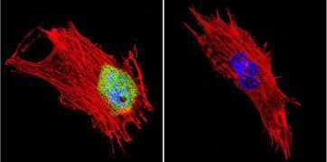 CRABP1 Antibody (MA3-813)