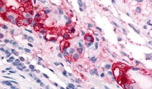 CRFR1 Antibody (PA5-32712)