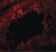 CRISP2 Antibody (PA5-21007)