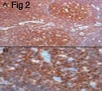 CSK Antibody (PA1-9034)