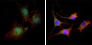 beta Catenin Antibody (MA5-15569)