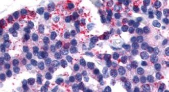 Calcitonin Receptor Antibody (PA5-33380)