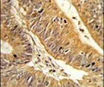 CXXC4 Antibody (PA5-26391)