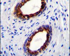 Cytokeratin 18 Antibody (PA5-14263)