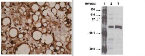 CYP4F11 Antibody (MA1-12890)