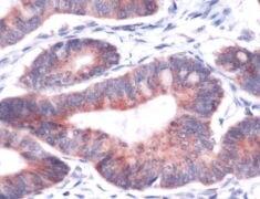 CYR61 Antibody (PA5-32375)