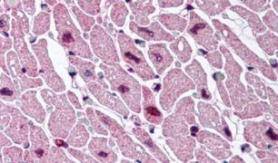 CYSLTR2 Antibody (PA5-32716)