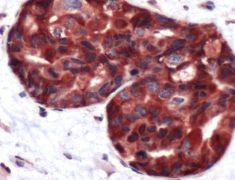 Calpastatin Antibody (PA5-32286)