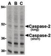 Caspase 2 Antibody (PA5-20107)
