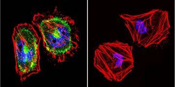 beta Catenin Antibody (MA1-300)