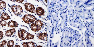beta Catenin Antibody (MA1-301)