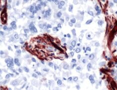 Caveolin 1 Antibody (PA5-32297)