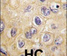 Claudin 1 Antibody (PA5-13332)