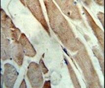 Creatine Kinase MB Antibody (PA5-13830)