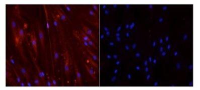 Myogenin Antibody (MA5-11486)