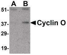 Cyclin O Antibody (PA5-20262)