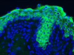 Cytokeratin 10 Antibody (MA1-06319)