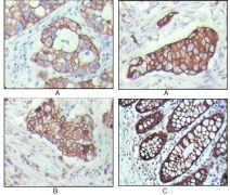 Cytokeratin 19 Antibody (MA5-15463)