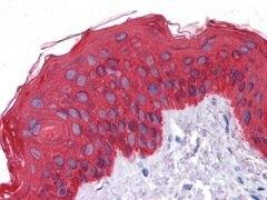 Cytokeratin 5 Antibody (MA5-15348)