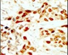 DAPK2 Antibody (PA5-14045)